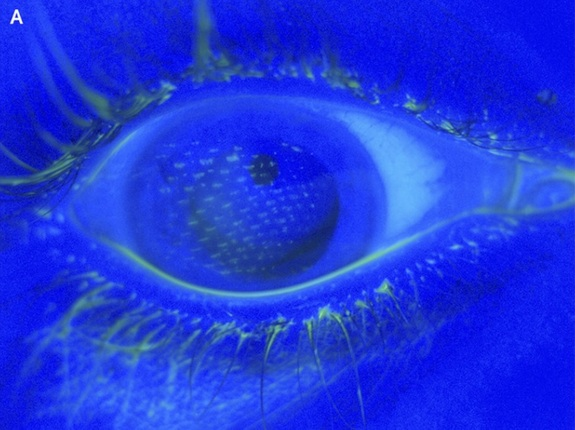 airbag-eye.jpg1403813268.cf